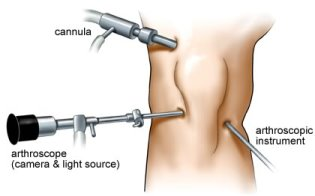 Arthroscopic Procedures